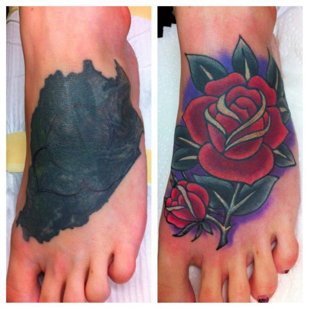 Local laser tattoo removal - Life in Franken & Oberpfalz - Toytown ...